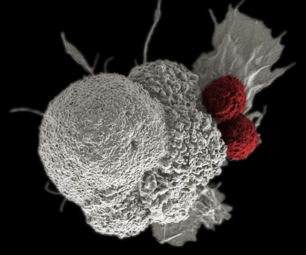 A felébresztett immunrendszer kisöpri a daganatot
